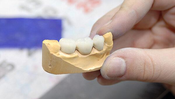 Wie Zahnersatz entsteht